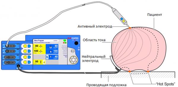 Схема протикания тока через пациента