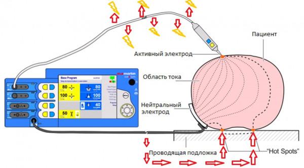 Схема откуда могут утекать токи