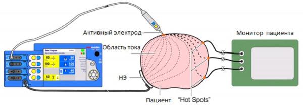 Схема утечков токи через другие приборы в операционной