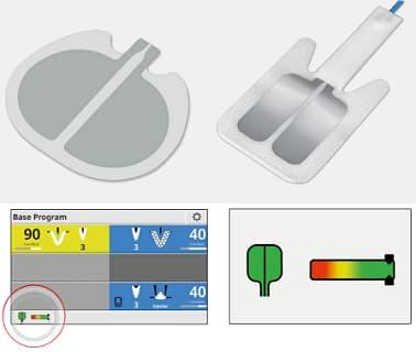 Примеры нейтральных электродов
