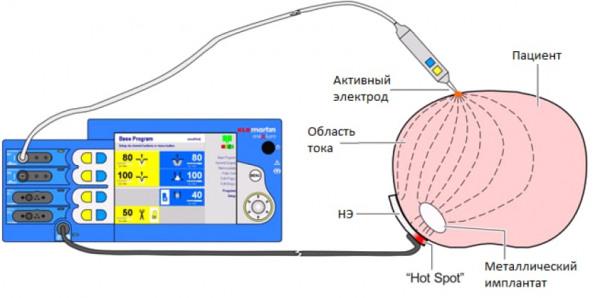 Схема протекания тока через пациента с металлическим имплантом