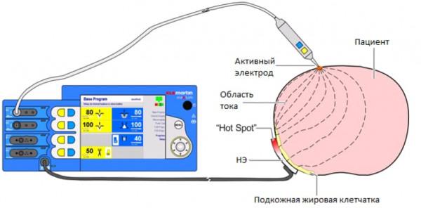 Схема протекания тока через пациента